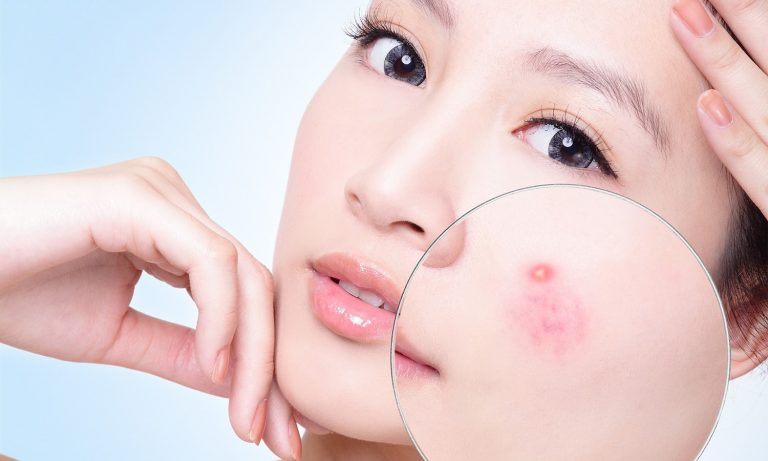 """Blow away"" hundreds of types of acne with 99% guaranteed effectiveness"